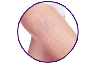 BALANCING CARE FOR SPIDER VEINS ON THE LEGS